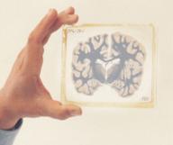 Le Harvard Brain Tissue Resource Center