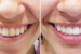 dentistes-francophones-francais-miami-kendall-beach-4