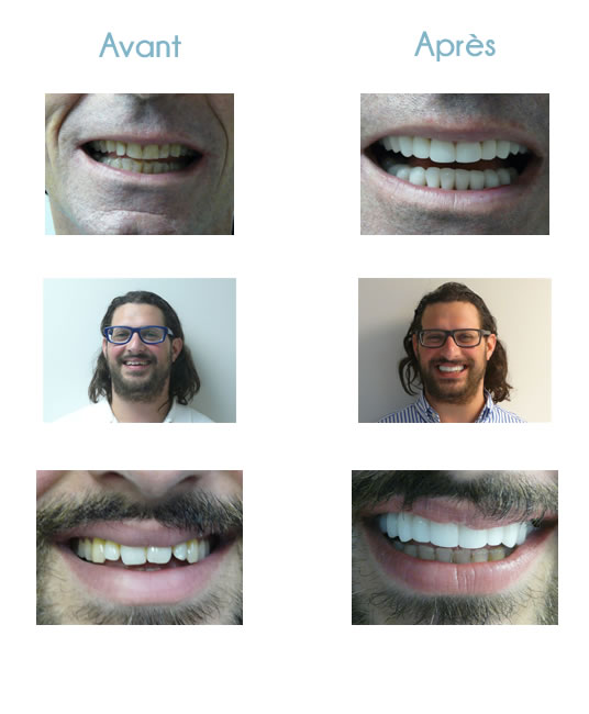 jean-jacques-edderai-dentisterie-cosmetique-miami-avant-apres2