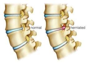 hernie-discale-causes-prevention-traitement-docteur-appelboom-02