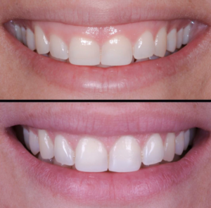Gummy Smile image 1