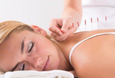 acupuncture-stress-patricia-lepertel