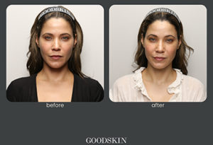 GOOd-skin-galerie-4.jpg